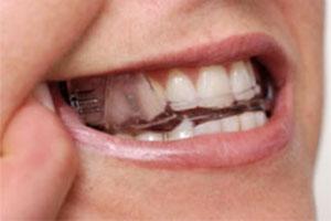 teeth300